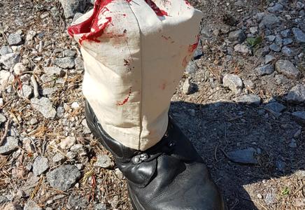 A civilian steps on landmine near Kaakonlammi